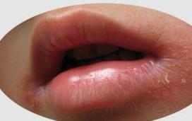 治疗口角炎中药方剂