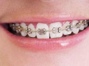 """牙齿矫正之""""隐形正畸"""""""