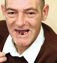 牙周病对人体的五大危害